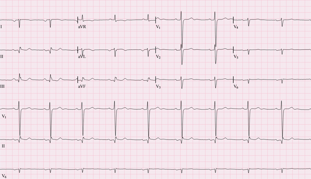 https://fisiosaludable.com/images/conceptos/Electrocardiograma.png